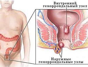 березовый деготь польза и вред при геморрое