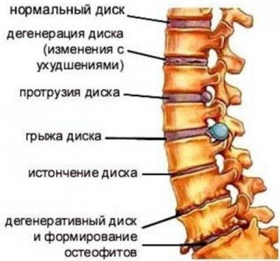 блокада позвоночника в мышцы польза и вред