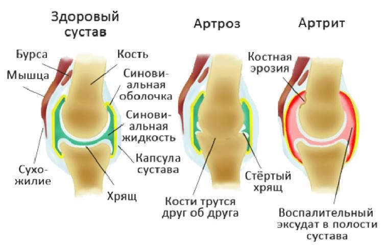 ходить на коленях польза и вред