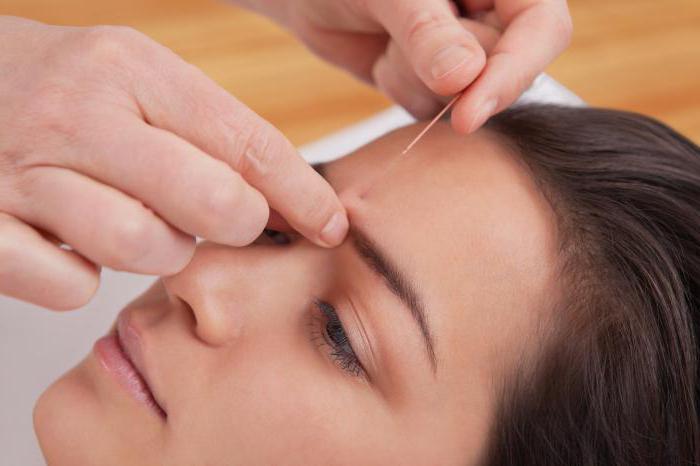 иглоукалывание польза и вред количество процедур