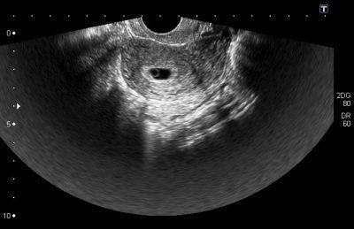 польза и вред узи при беременности