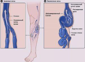 гирудотерапия польза и вред при варикозе