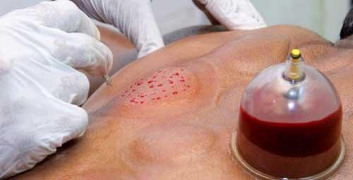 кровопускание в исламе польза и вред