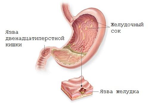облепиха полезные свойства и противопоказания при язве желудка