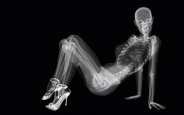 что полезно для костей и что укрепляет их