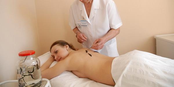 гирудотерапия в гинекологии польза и вред