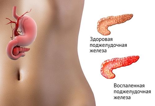 молочная сыворотка польза или вред при панкреатите