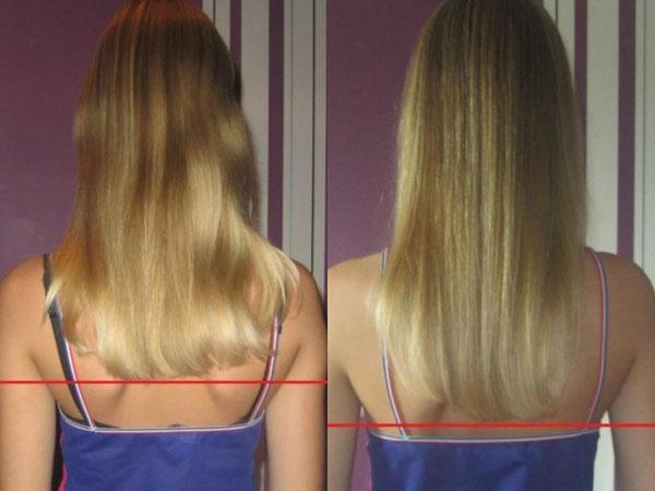 отвар из крапивы для волос чем полезен