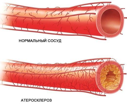 аторвастатин от холестерина польза и вред