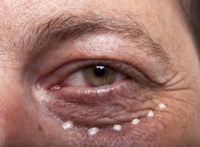 чем полезно касторовое масло для кожи вокруг глаз
