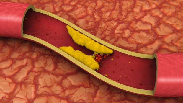 что полезно и что вредно при повышенном холестерине